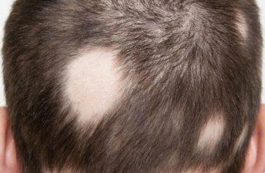 Alopecia Areata: o que é e de que modo tratar?