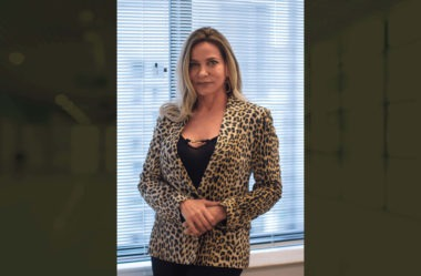 Calvície Feminina: do implante capilar ao Sistema CNC – confira o depoimento da Ana Maria Ventura